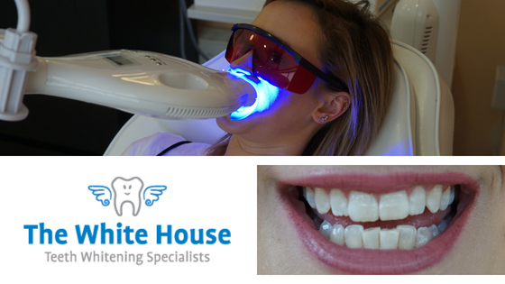Teeth Whitening with The White House